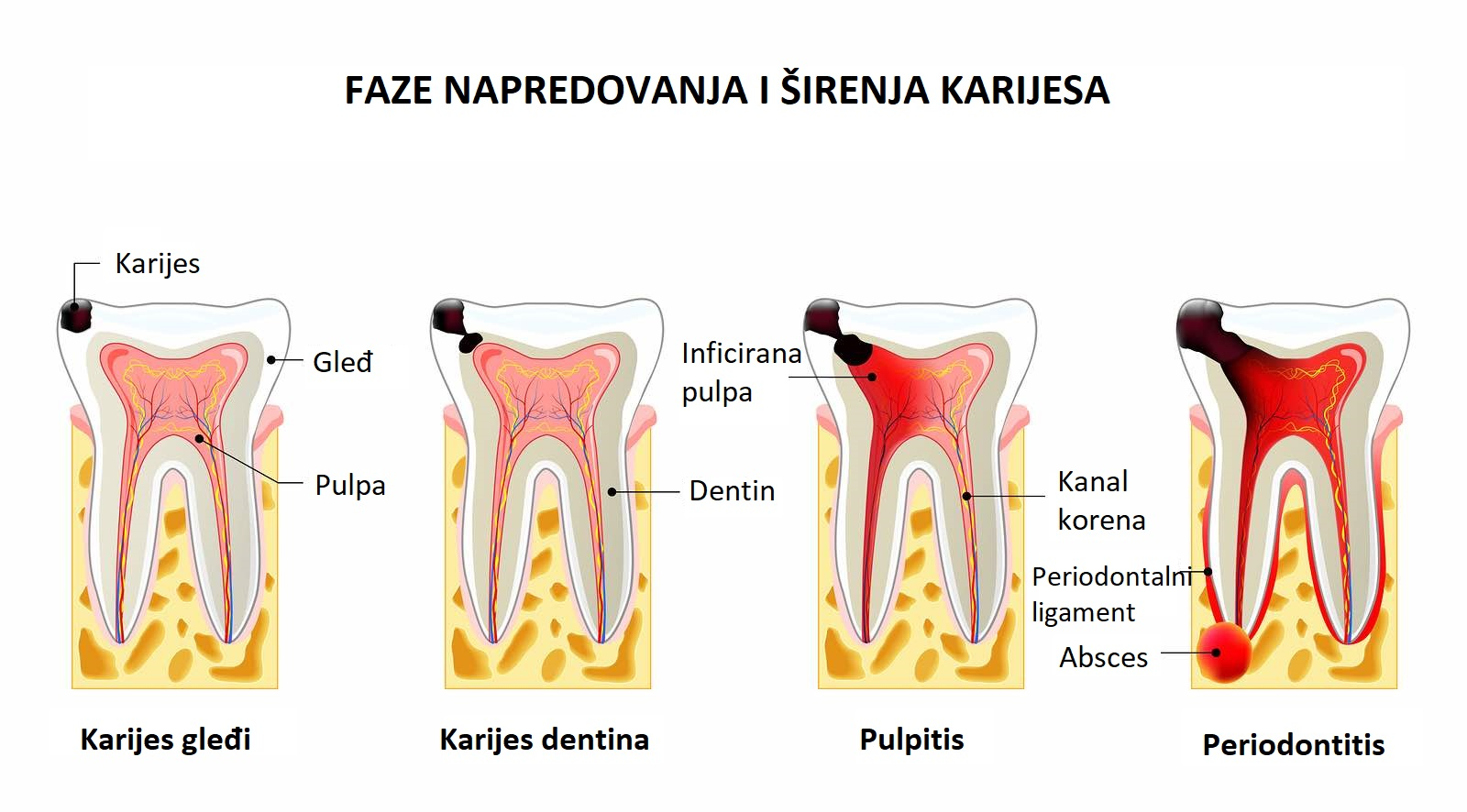 stages of caries development. Dental disease: caries pulpitis and periodontitis