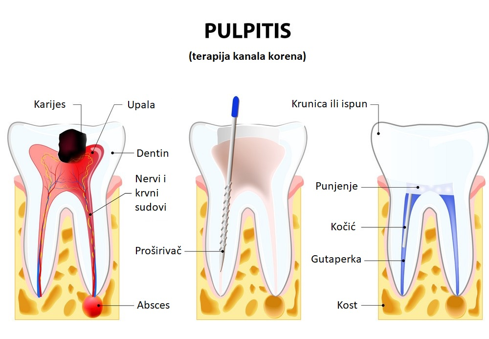 pulpitis-root-canal-therapy-vector-10499272