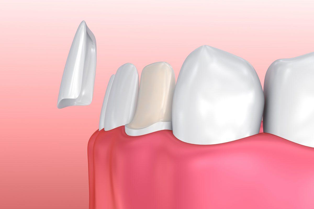 Veneers-2-Verblendschalen-Zahnarztpraxis-dr.-robert-lau-zahnarzt-dorsten-zahnaerzte-46284-Dorsten-ihr-facharzt-fuer-zaehne-Behandlungen-1-1200x800