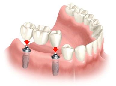 dentalimplantshuntersvillenc