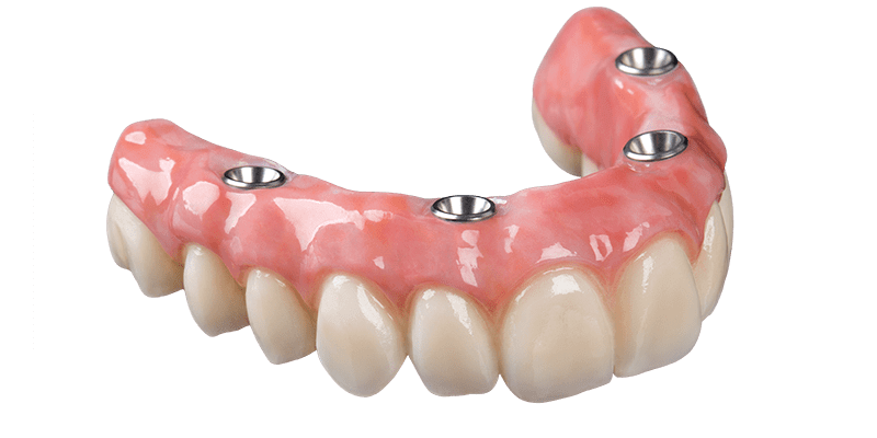 kisspng-dental-implant-dentures-removable-partial-denture-dental-implants-5b2194a5aa71b8.3550844315289273976982