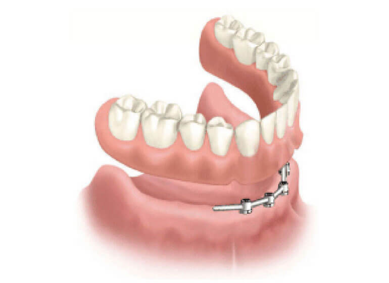 polufiksna-proteza-na-implantatima